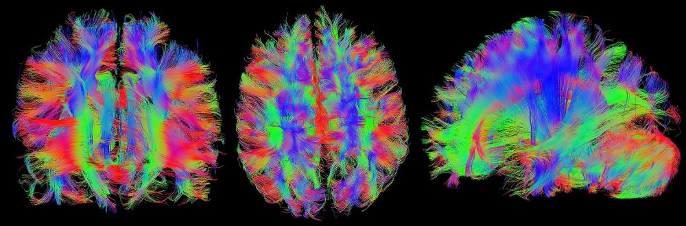 3 colourful images of brains